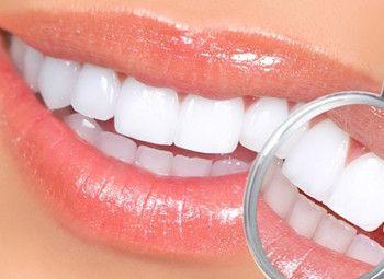 Студия косметического отбеливания зубов по уникальной методике